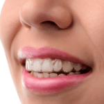 african american invisalign provider nyc