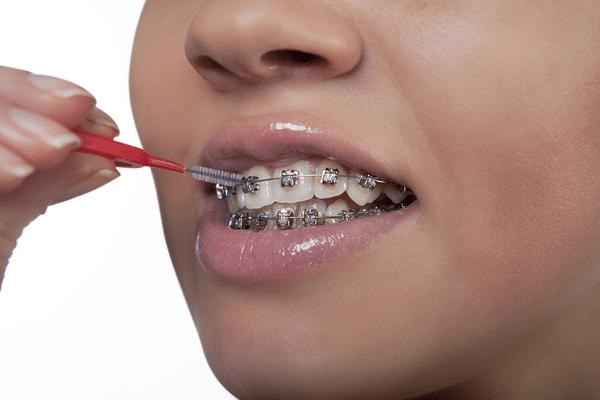 UFT Orthodontist Brooklyn